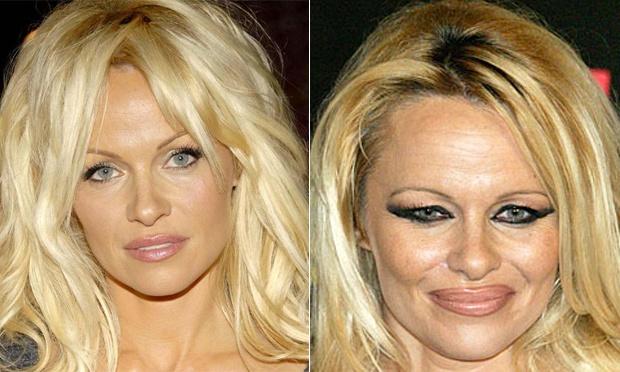 famosas-botox-pamela-anderson-30615