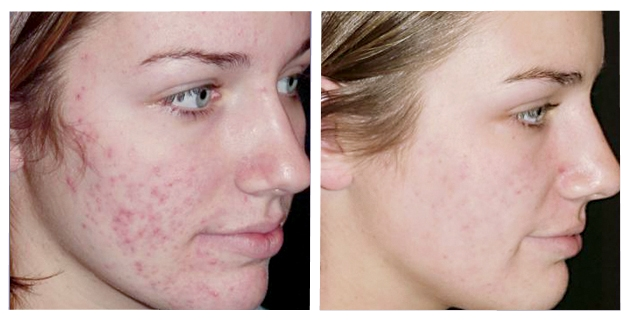 peeling-profundo-para-acne-antes-e-depois